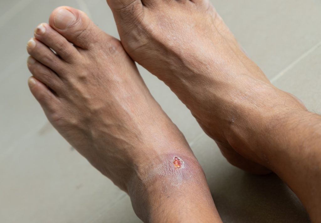 Leg or foot ulcers