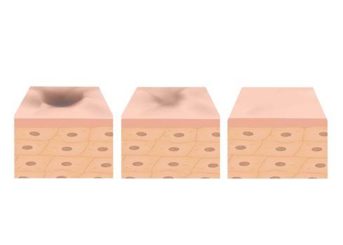 Non healing scars – Case studies